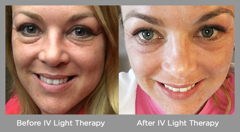 Before and After IV Light Therapy