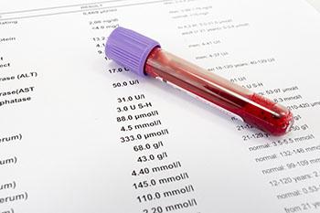 Blood Hormone Test
